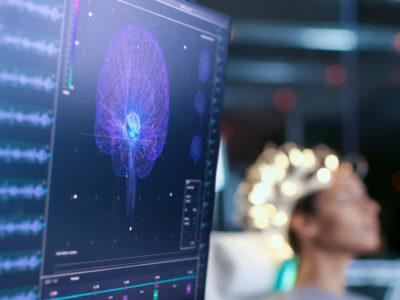 Bild eines Gehirnwellenscanners